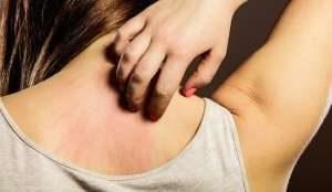 Le allergie più strane che colpiscono le donne